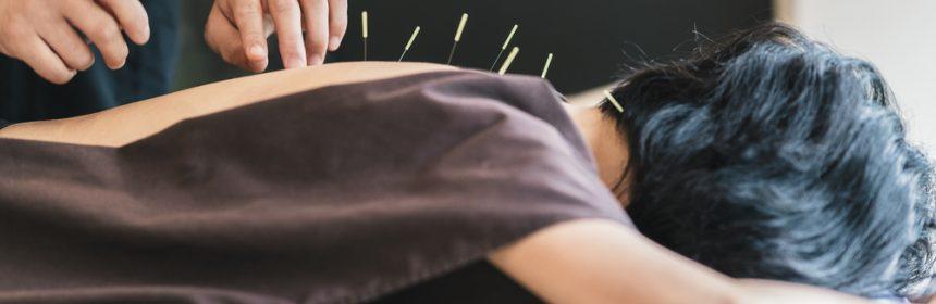 Akupunktur klimakteriebesvär