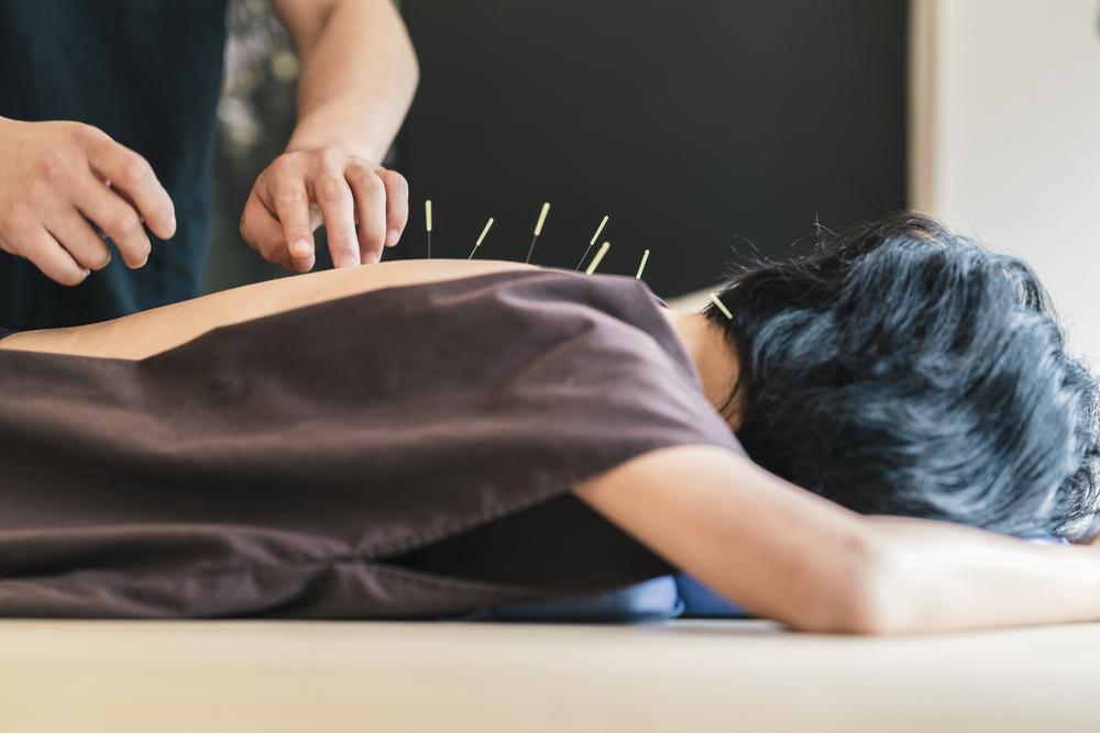 Akupunktur Stockholm
